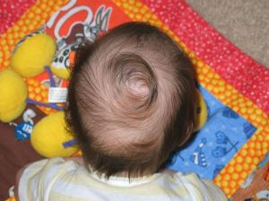 hair whorl is genetic